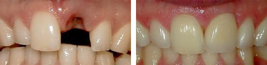 Before and After Dental Implants and Crowns Photo